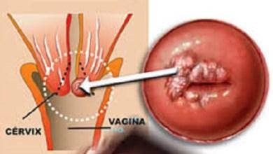 Científicos mexicanos trabajan nueva terapia contra cáncer cérvico-uterino