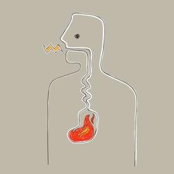 Heartburn-acid-reflux-gerd-gluten-autoimmune