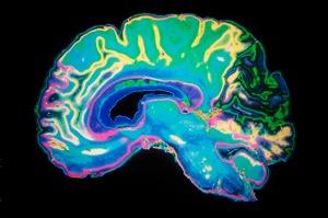 3 05 dementia doubling lower risk