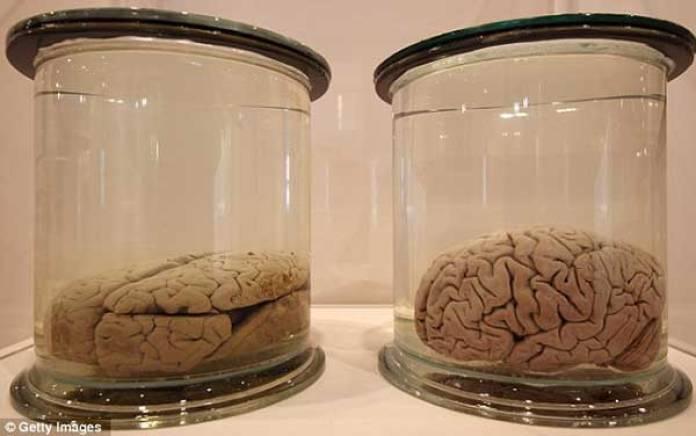 अल्बर्ट आइंस्टीन का दिमाग