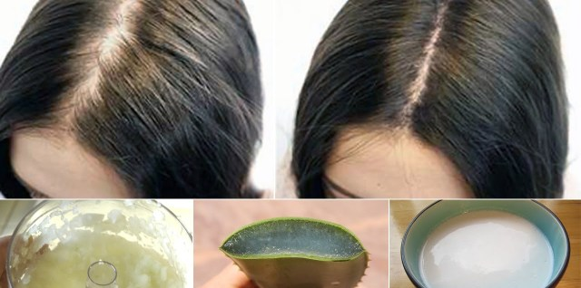 Proven Tips How To Prevent Hair Loss