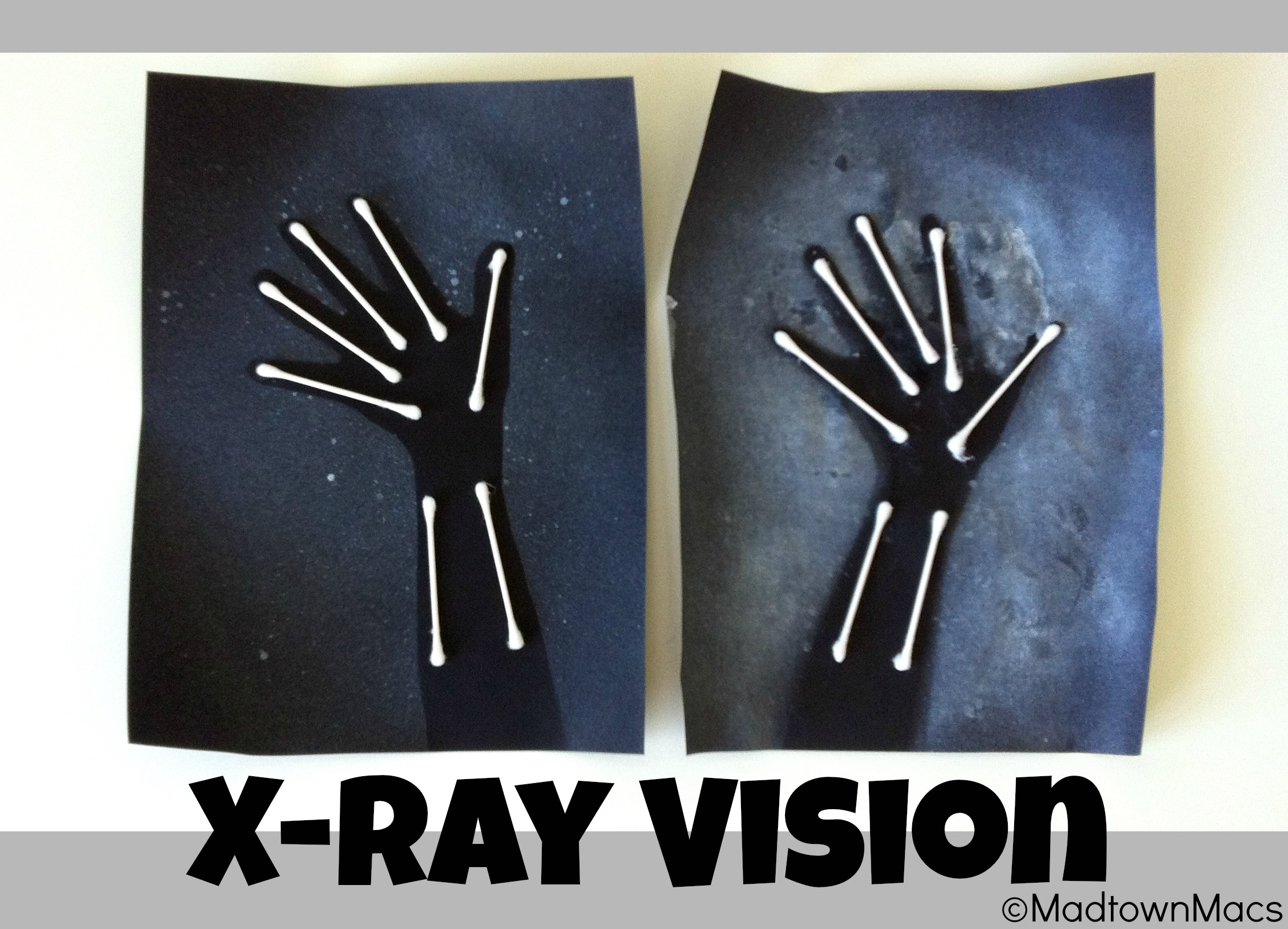 X Ray Arms