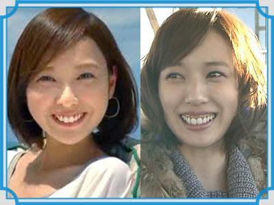 戸田恵梨香 歯茎 比較