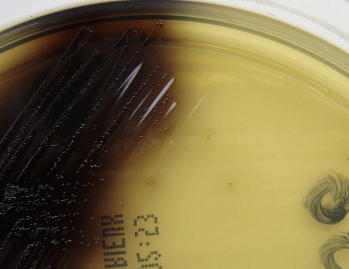 Listeria monocytogenes on oxford agar