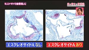 エスクレオサイド血管