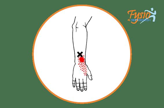 handen polsklachten fysio 4 den bosch