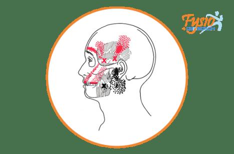 hoofdpijn-fysio4denbosch