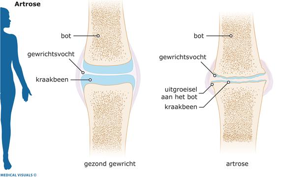 knie artrose fysio oefentherapie