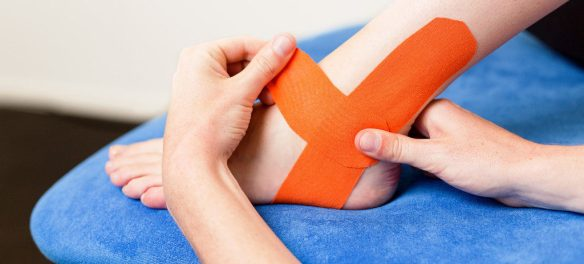 easytaping_fysiotherapie_sportblessure-1024x683