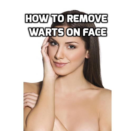 How Best to Really Get Rid of Face Warts Absolutely?  It is a fact that no one likes to have warts on one's face which is why many people want to get rid of face warts. Read on to find out more.