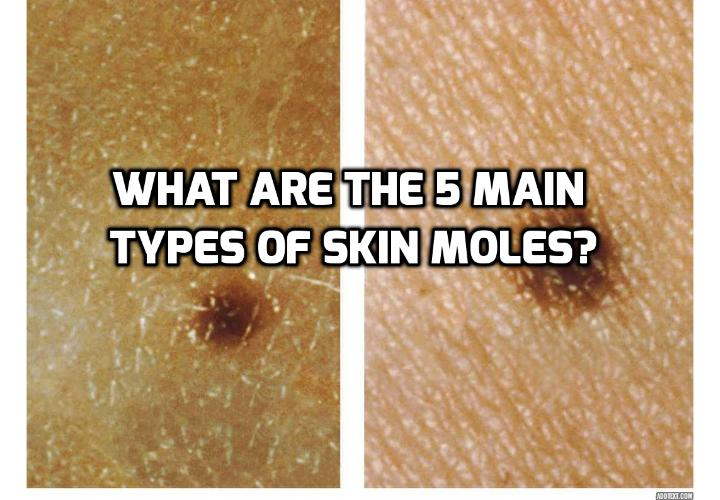 Yes! Revealing Here 5 Main Types of Skin Moles- Different types of skin moles have different characteristics and properties. It is therefore important to be aware of the main types of skin moles that exist. Read on to find out more.