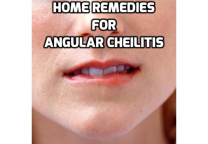 What are the Minor Issues which Aggravate Angular Cheilitis? When you have angular Cheilitis you want to get rid of it instantly and would do whatever it takes for that to happen. Yet, without knowing some of the issues which aggravate angular cheilitis and instead of getting rid of it you only make it more serious and resistant to any type of treatment.