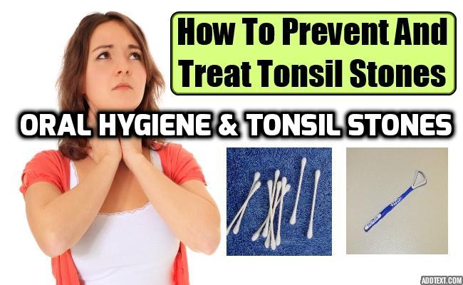 The Importance of Oral Hygiene in Tonsil Stones Prevention - Individuals who do not maintain healthy oral hygiene routines are especially prone to developing tonsil stones, as the build-up of debris in the mouth can clog the surface of the tonsils.