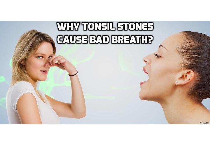 What Causes Tonsil Stones Bad Breath? Most individuals who suffer from tonsil stones do not experience serious medical symptoms. However, some patients develop tonsil stones bad breath that can impact their lifestyle and sense of wellbeing significantly.