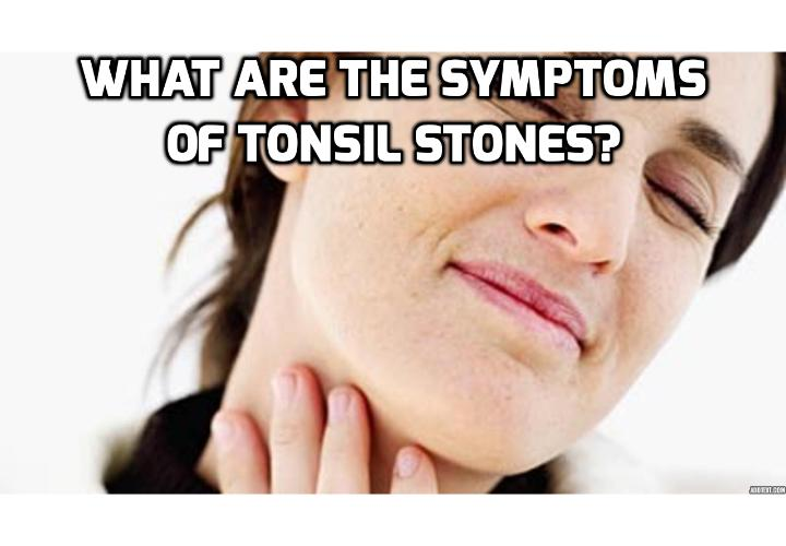 What are the Symptoms of Tonsil Stones? Bad breath is one of the primary symptoms of tonsil stones. Researchers estimate that approximately 75% of people with abnormally unpleasant breath also suffered from tonsil stones.