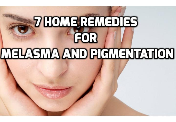 7 Home Remedies for Fighting Melasma and Pigmentation - Melasma or hyperpigmentation is a particular skin condition followed by scattered uneven patches of reddish colored skin patches that is caused due to improper distribution of the skin pigment melanin. Read on here to learn about the 7 home remedies for fighting melasma and pigmentation.