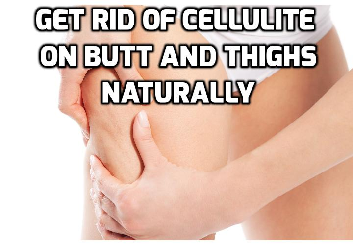 Revealing Here 8 No Risk Ways to Remove Cellulite -Smooth and tight thighs without cellulite are what many women today. Cellulite can appear when you don't notice. Read on here to learn the 8 ways to remove cellulite naturally.