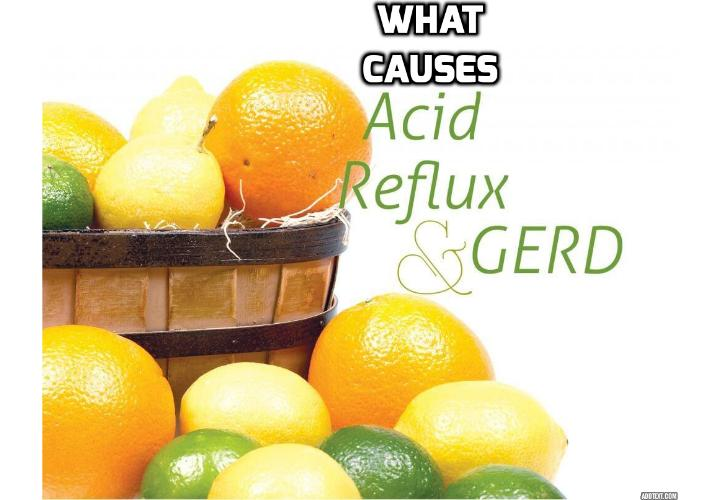 Causes of Acid Reflux - Causes of acid reflux disease, also known as gastro-esophageal reflux disease (GERD), can be due to the coexistence of several medical and lifestyle conditions.