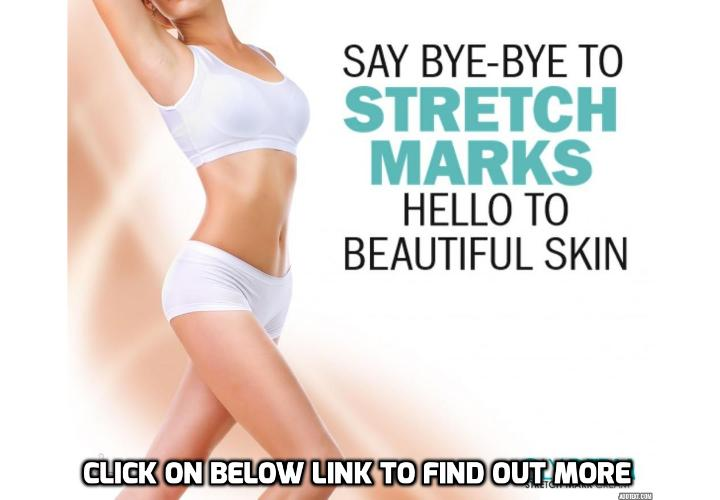 The Only Real Way to Get Rid of Stretch Marks - The Only Real Way to Get Rid of Stretch Marks