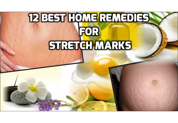 Revealing Here the 12 Best Home Remedies for Stretch Marks - In this post, I am going to discuss about stretch marks, what causes stretch marks, what are the home remedies for stretch marks and some easy exercises you can do to reduce the appearance of stretch marks and a video clip on how to get rid of stretch marks and scars. Read on to find more.