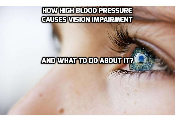 How High Blood Pressure Causes Vision Impairment and What to Do About It?  A research team from Saitama Medical University in Japan, knowing that high blood pressure caused vision impairment, wanted to analyze the relationship between color vision, eye disease, heart attack risk, and lifestyle habits. Read on to find out more.