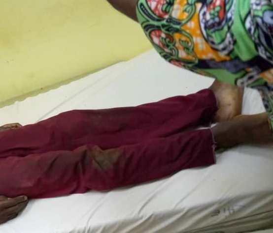 Il poignarde à mort son condisciple de classe à Tchibanga
