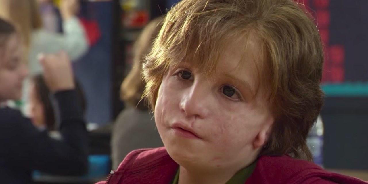 Síndrome de Treacher Collins: ¿qué es?