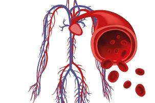 ¿Por qué estudiar Angiología y Cirugía Vascular?