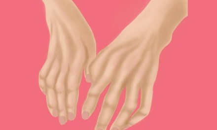 Esclerosis Lateral Amiotrófica: Apoyo psicológico atenúa lucha de los pacientes