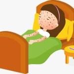 Sarampión, una infección prevenible