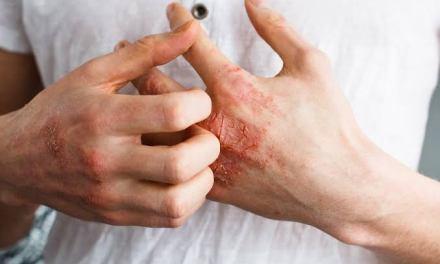 Úlceras en la piel y distintos tipos de lesiones