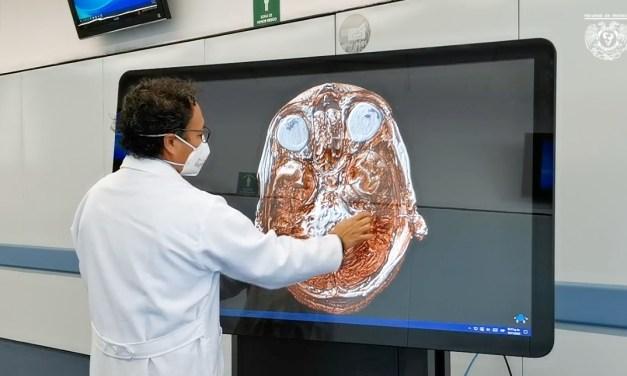 La Facultad de Medicina entrega claves de acceso para la plataforma «SECTRA»