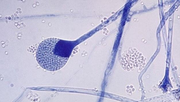 Mucormicosis, la enfermedad producida por el hongo negro