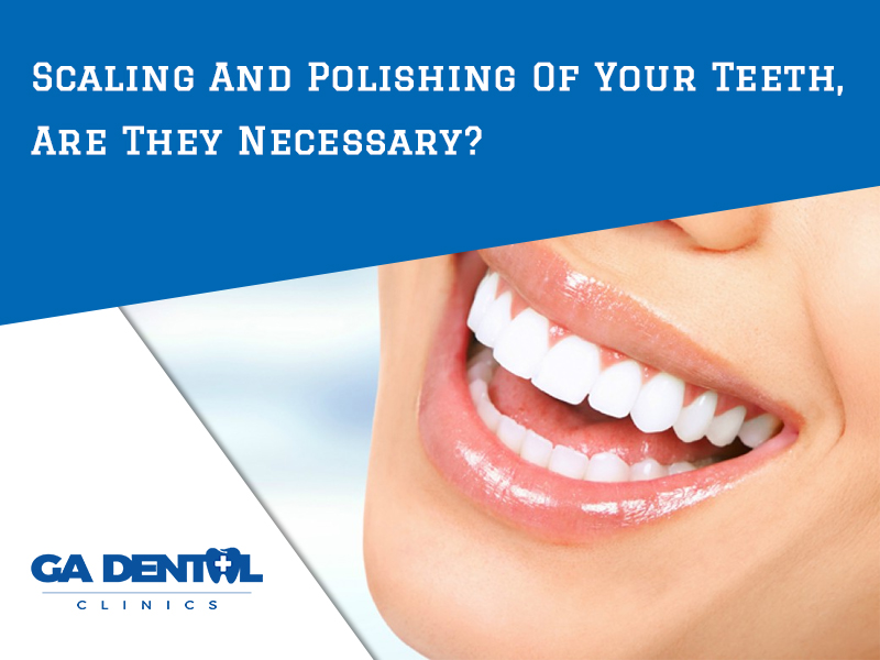 Scaling And Polishing Of Your Teeth - Are They Necessary