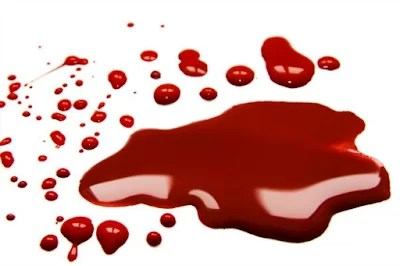 A life-threatening postpartum haemorrhage (PPH) involves losing at least 500 ml of blood from the uterus or vagina.