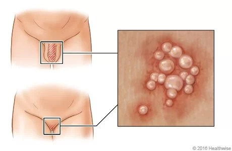 What is genital herpes?   causes   treatment