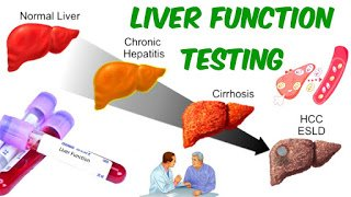 Liver Function Tests (LFTs) (Clinical laboratory exercise)