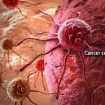 Cancer and Etiology of carcinogenesis