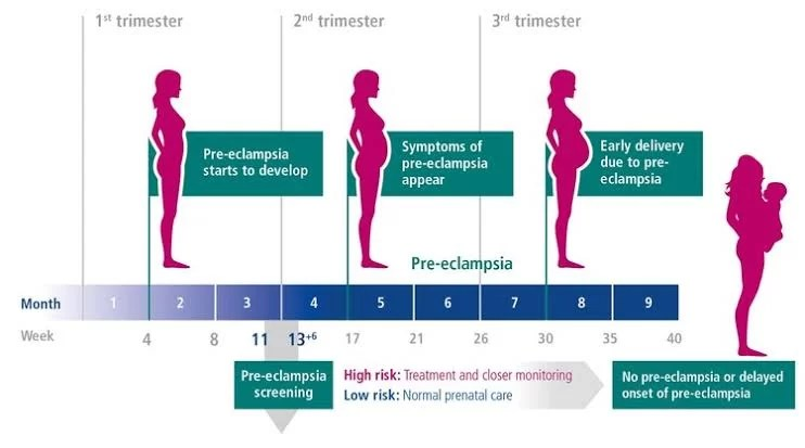 What is eclampsia, causes, symptoms and onset