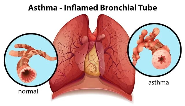 An image of an asthma-inflamed bronchial tube