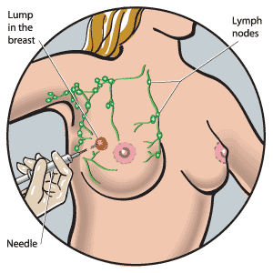 What is Breast Lump and how to diagnose it