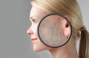 Overcome Dry Skin In Winter Season