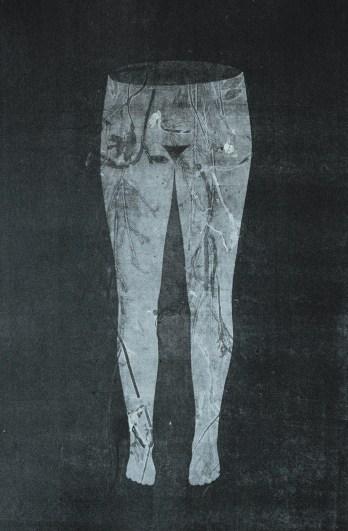Sophie Lécuyer - Radiographie - 5 - 60X40