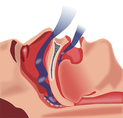 Allergies and sleep