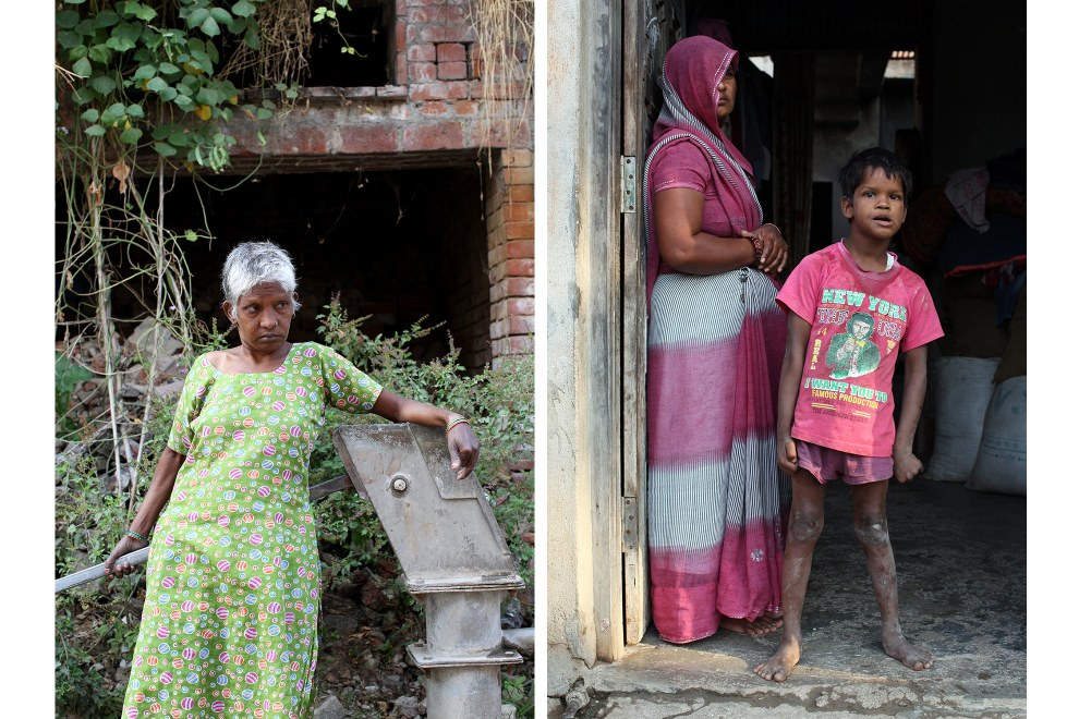 Kiran Devi (Left) and Ayush Kumar, 10, (Right) both come from the same village that is afflicted with water pollution from nearby tanneries. It is suspected that increased exposure to harmful chemicals during mothers' pregnancies might be causing the increased number of children being born with mental disabilities in the villages outside Kanpur.