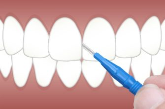 Everything You Should Know about Dental Fillings · Gallegos