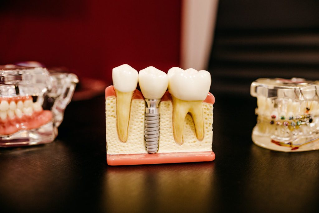 about dental implants