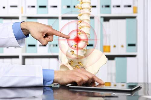 Tulang Belakang Sehat