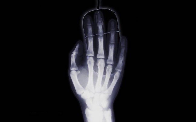 Unity 2D x-Ray