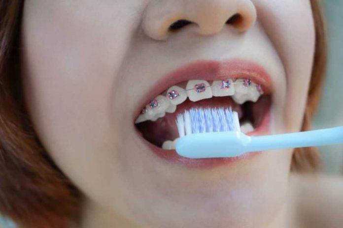 8 Cara Mudah Merawat Gigi Behel Agar Tetap Putih dan Sehat
